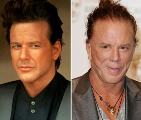 Mickey-Rourke-botox-facelift-surgery-before-and-after